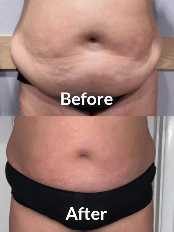 Kent Fat dissolving injections